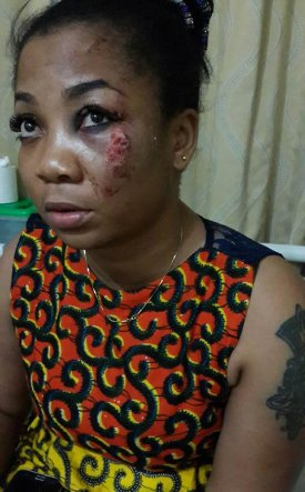 Vicky Zugah after her accident