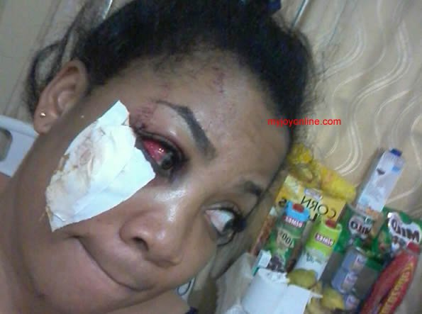 Vicky Zugah in the hospital